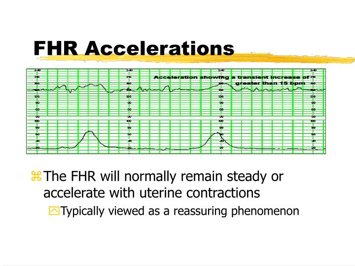 FHR Accelerations