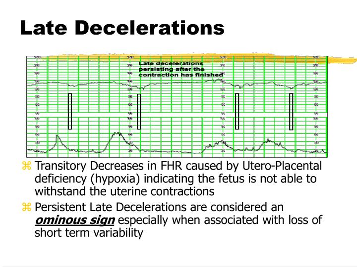 Late Decelerations
