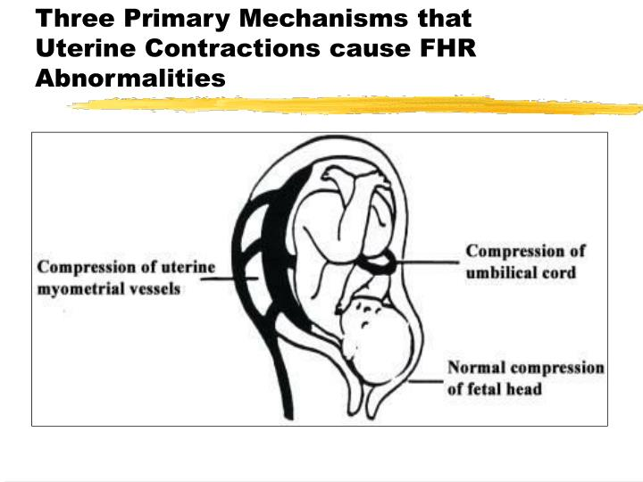 Three Primary Mechanisms that Uterine Contractions cause FHR Abnormalities