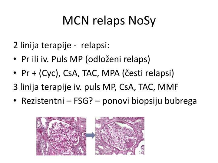 MCN relaps NoSy