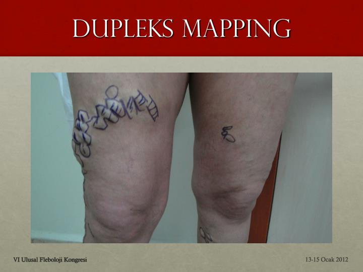 Dupleks Mapping