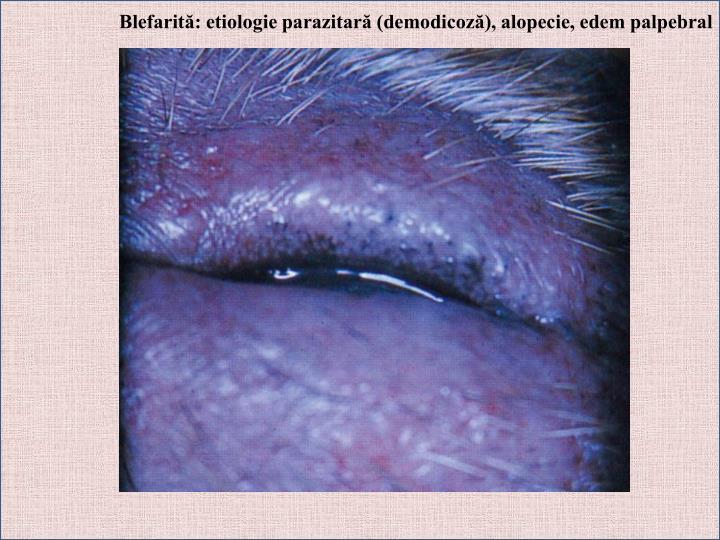 Blefarită: etiologie parazitară (demodicoză), alopecie, edem palpebral
