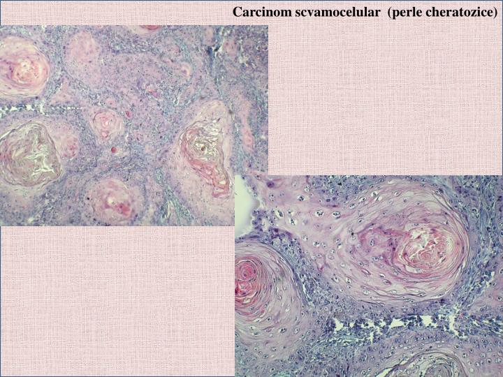 Carcinom scvamocelular  (perle cheratozice)