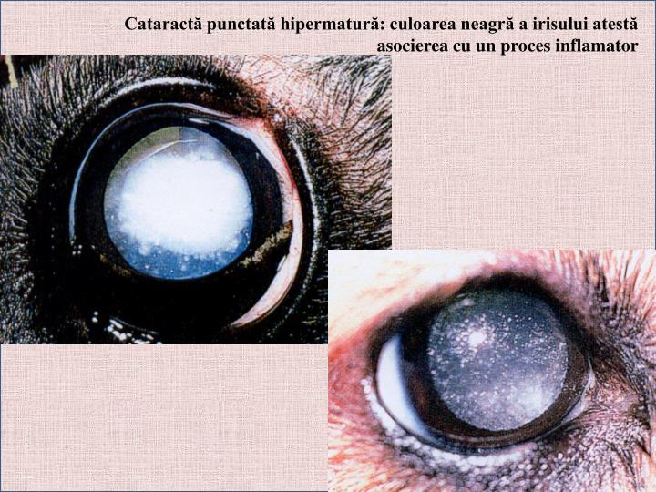 Cataractă punctată hipermatură: culoarea neagră a irisului atestă asocierea cu un proces inflamator