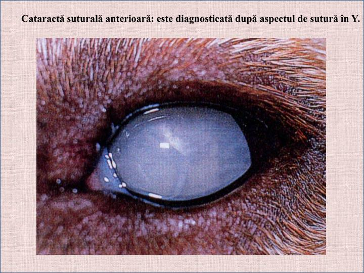 Cataractă suturală anterioară: este diagnosticată după aspectul de sutură în Y.