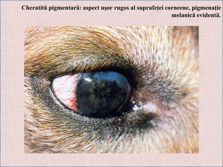 Cheratită pigmentară: aspect uşor rugos al suprafeţei corneene, pigmenaţie melanică evidentă.