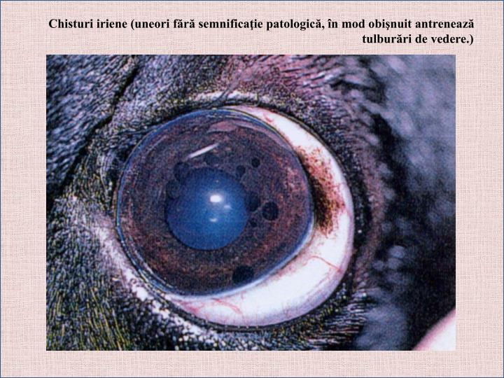 Chisturi iriene (uneori fără semnificaţie patologică, în mod obişnuit antrenează tulburări de vedere.)