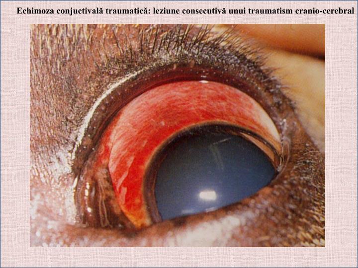 Echimoza conjuctivală traumatică: leziune consecutivă unui traumatism cranio-cerebral