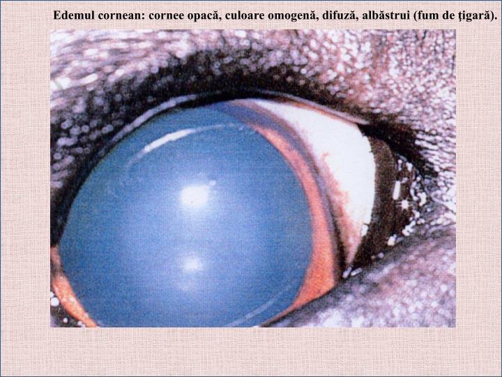 Edemul cornean: cornee opacă, culoare omogenă, difuză, albăstrui (fum de ţigară).