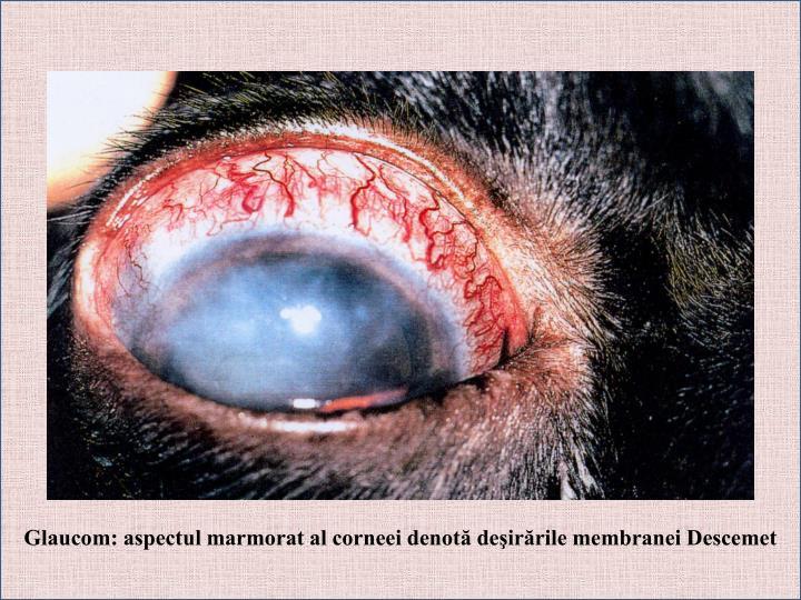Glaucom: aspectul marmorat al corneei denotă deşirările membranei Descemet