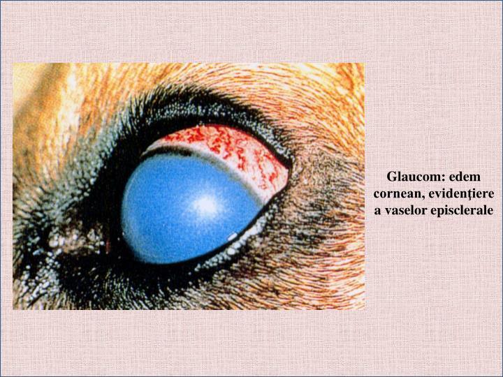 Glaucom: edem cornean, evidenţiere a vaselor episclerale