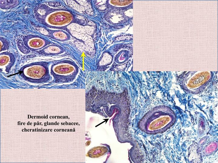 Dermoid cornean,