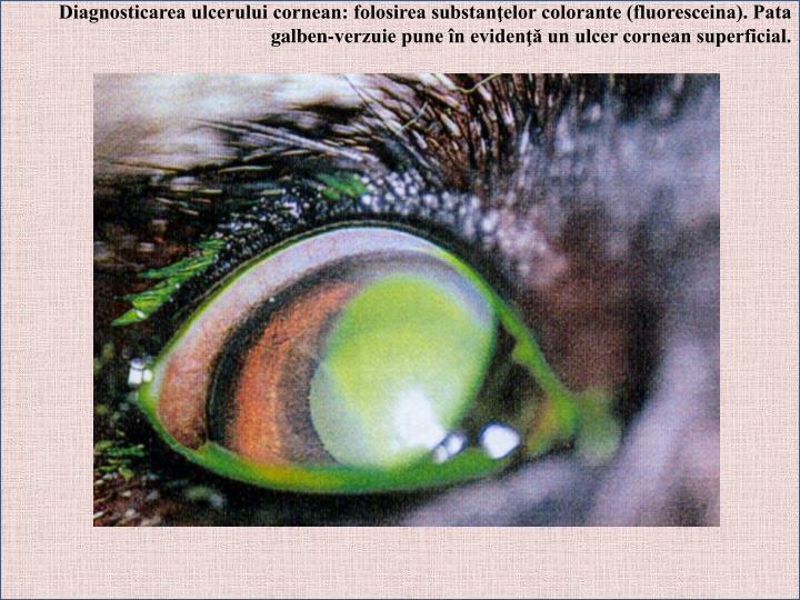 Diagnosticarea ulcerului cornean: folosirea substanţelor colorante (fluoresceina). Pata galben-verzuie pune în evidenţă un ulcer cornean superficial.
