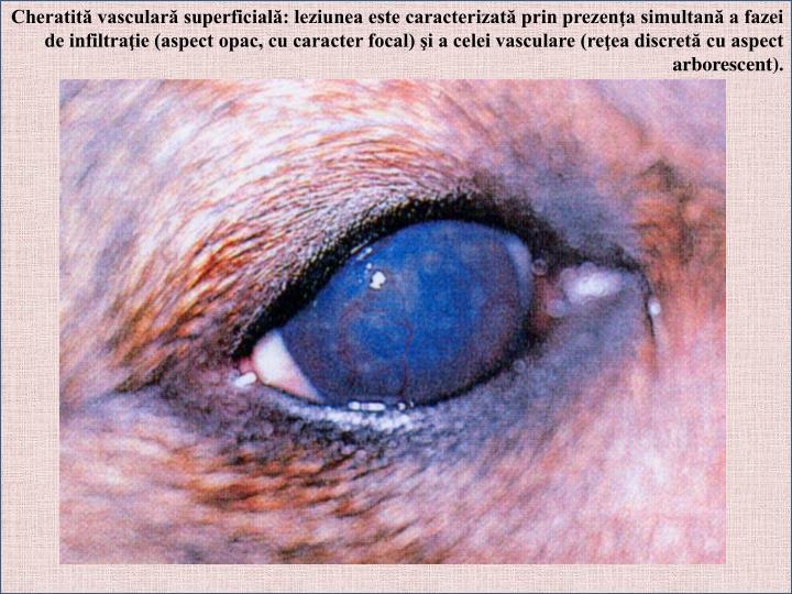 Cheratită vasculară superficială: leziunea este caracterizată prin prezenţa simultană a fazei de infiltraţie (aspect opac, cu caracter focal) şi a celei vasculare (reţea discretă cu aspect arborescent).
