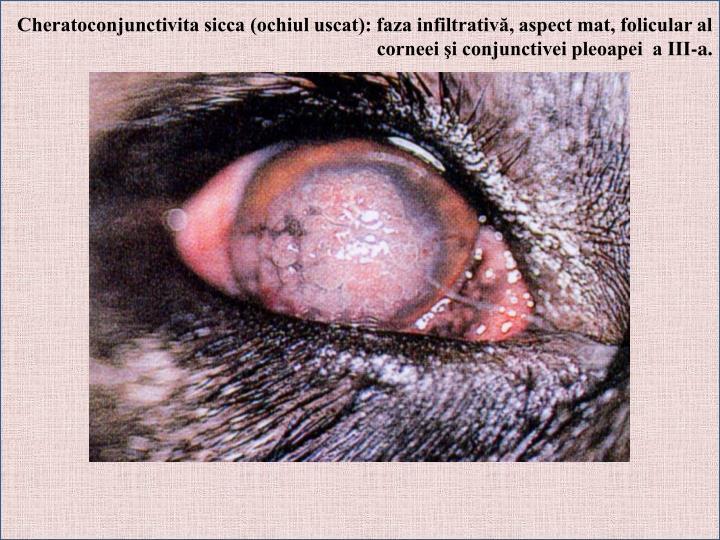 Cheratoconjunctivita sicca (ochiul uscat): faza infiltrativă, aspect mat, folicular al corneei şi conjunctivei pleoapei  a III-a.