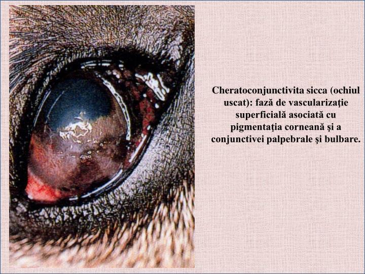 Cheratoconjunctivita sicca (ochiul uscat): fază de vascularizaţie superficială asociată cu pigmentaţia corneană şi a conjunctivei palpebrale şi bulbare.