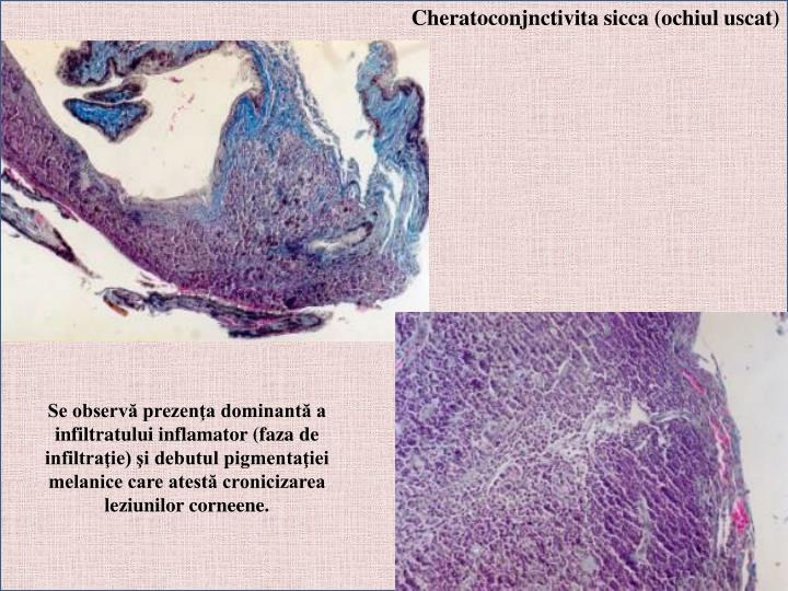 Cheratoconjnctivita sicca (ochiul uscat)