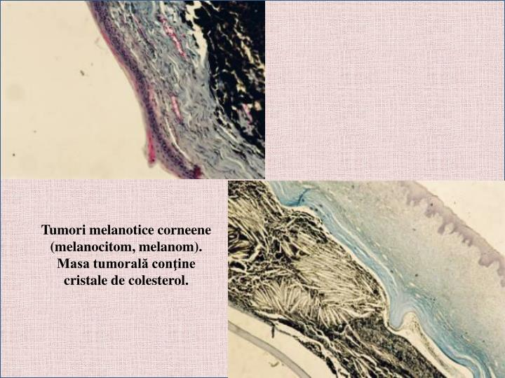 Tumori melanotice corneene (melanocitom, melanom). Masa tumorală conţine cristale de colesterol.