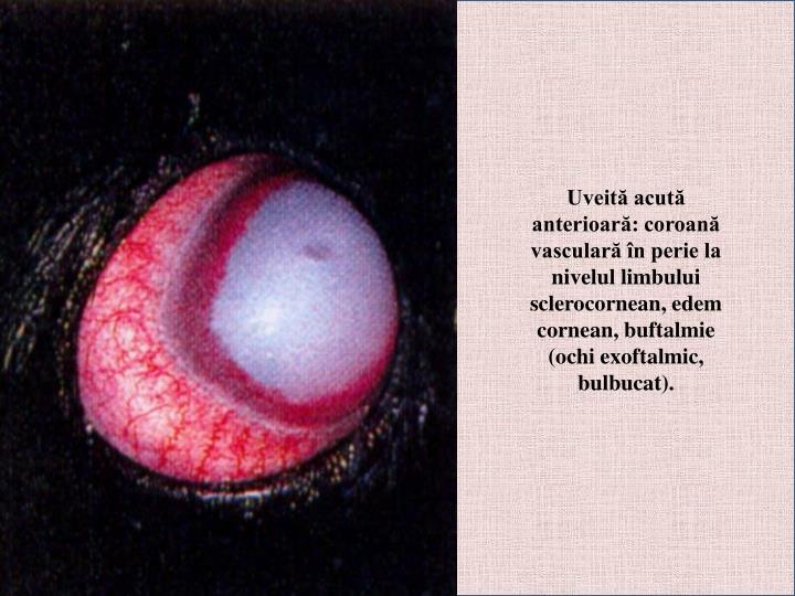 Uveită acută anterioară: coroană vasculară în perie la nivelul limbului sclerocornean, edem cornean, buftalmie (ochi exoftalmic, bulbucat).