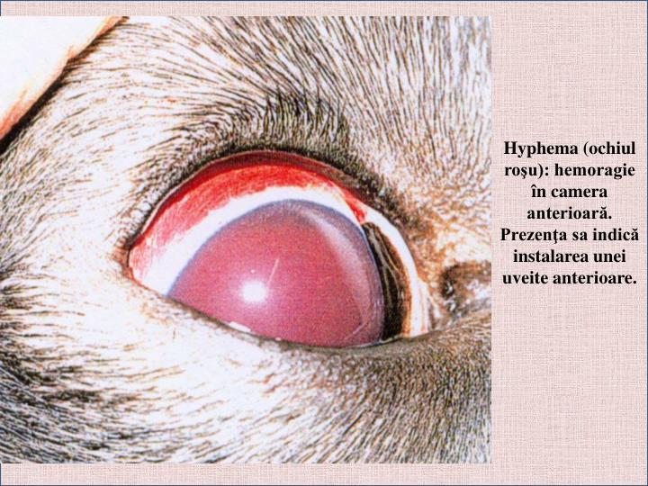Hyphema (ochiul roşu): hemoragie în camera anterioară. Prezenţa sa indică instalarea unei uveite anterioare.