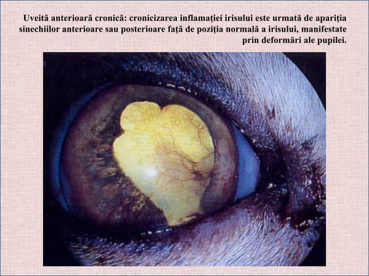 Uveită anterioară cronică: cronicizarea inflamaţiei irisului este urmată de apariţia sinechiilor anterioare sau posterioare faţă de poziţia normală a irisului, manifestate prin deformări ale pupilei.