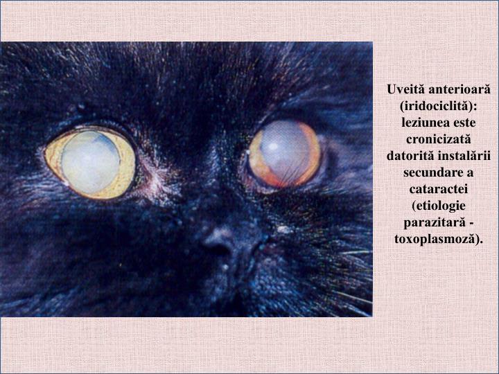 Uveită anterioară (iridociclită): leziunea este cronicizată datorită instalării secundare a cataractei (etiologie parazitară - toxoplasmoză).