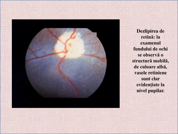 Dezlipirea de retină: la examenul fundului de ochi se observă o structură mobilă, de culoare albă, vasele retiniene sunt clar evidenţiate la nivel pupilar.