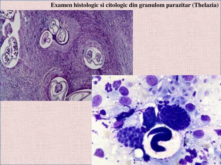 Examen histologic si citologic din granulom parazitar (Thelazia)