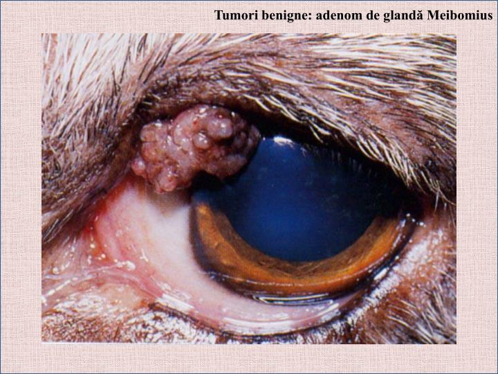 Tumori benigne: adenom de glandă Meibomius