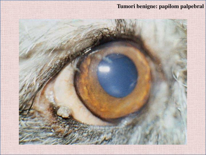 Tumori benigne: papilom palpebral