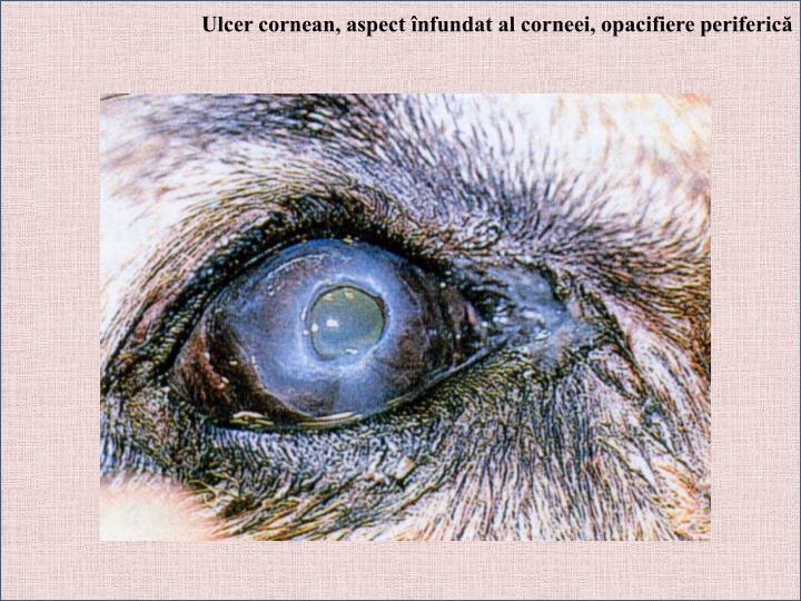 Ulcer cornean, aspect înfundat al corneei, opacifiere periferică