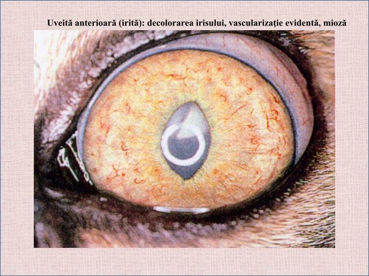 Uveită anterioară (irită): decolorarea irisului, vascularizaţie evidentă, mioză