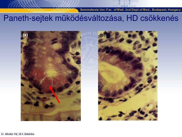 Paneth-sejtek működésváltozása, HD csökkenés