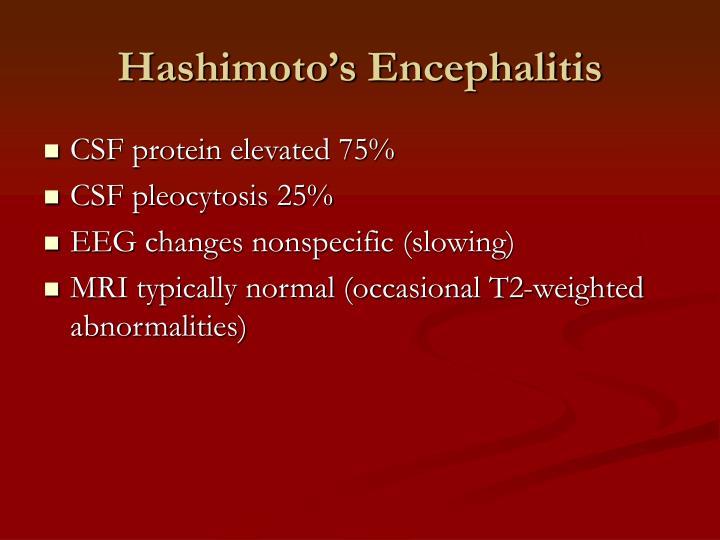 Hashimoto's Encephalitis