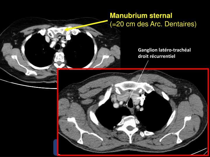 Manubrium sternal