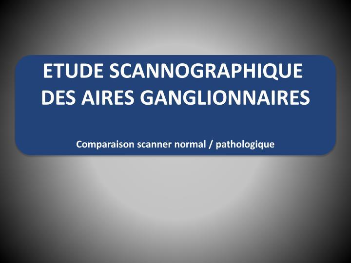 ETUDE SCANNOGRAPHIQUE