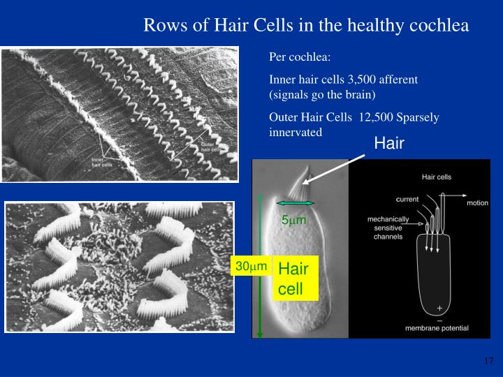Rows of Hair Cells in the healthy cochlea