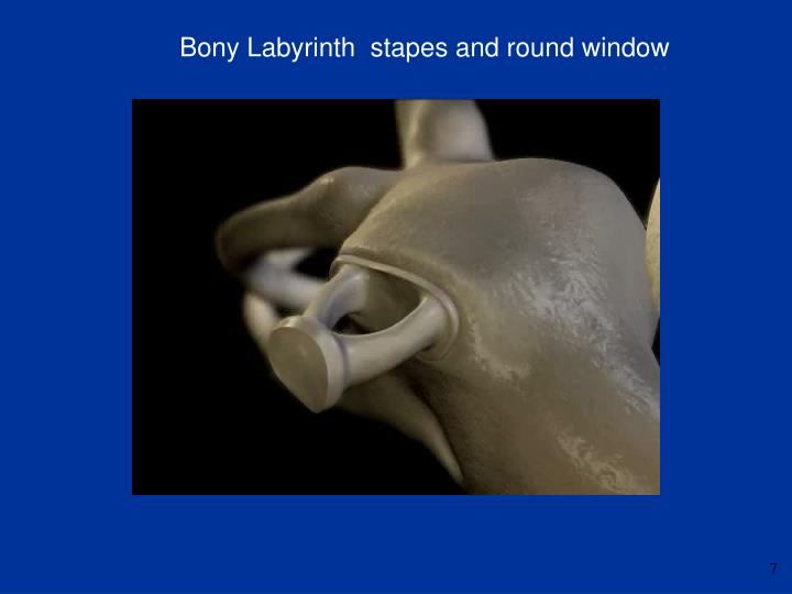 Bony Labyrinth  stapes and round window