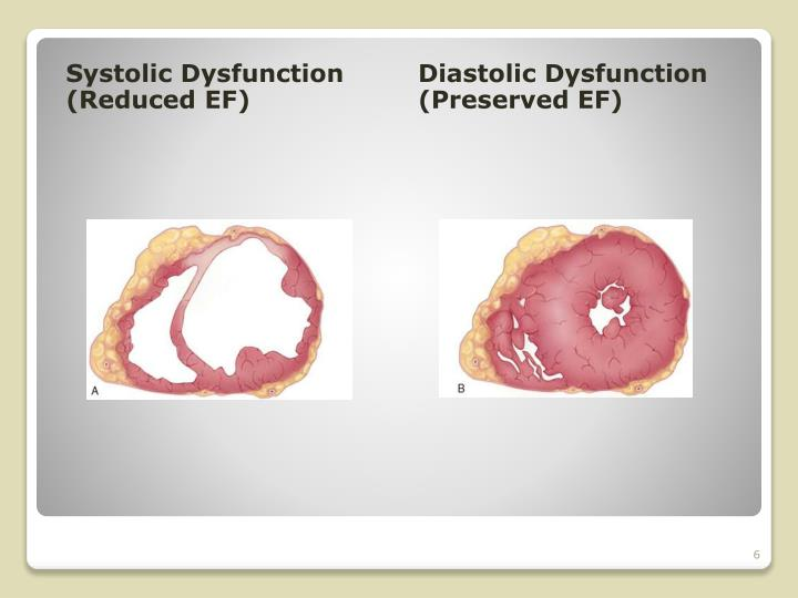 Systolic Dysfunction (Reduced EF)