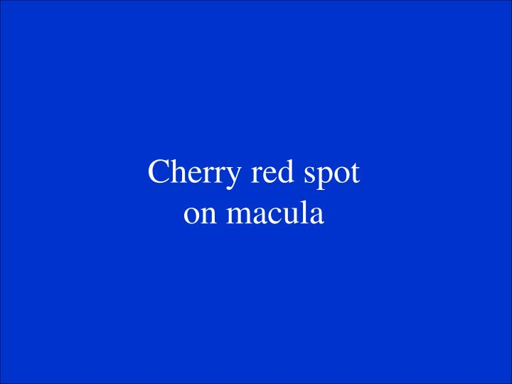 Cherry red spot on macula