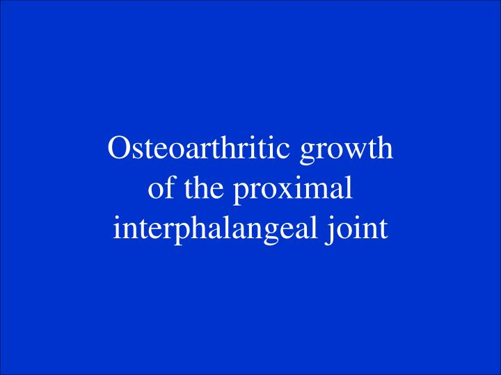 Osteoarthritic growth