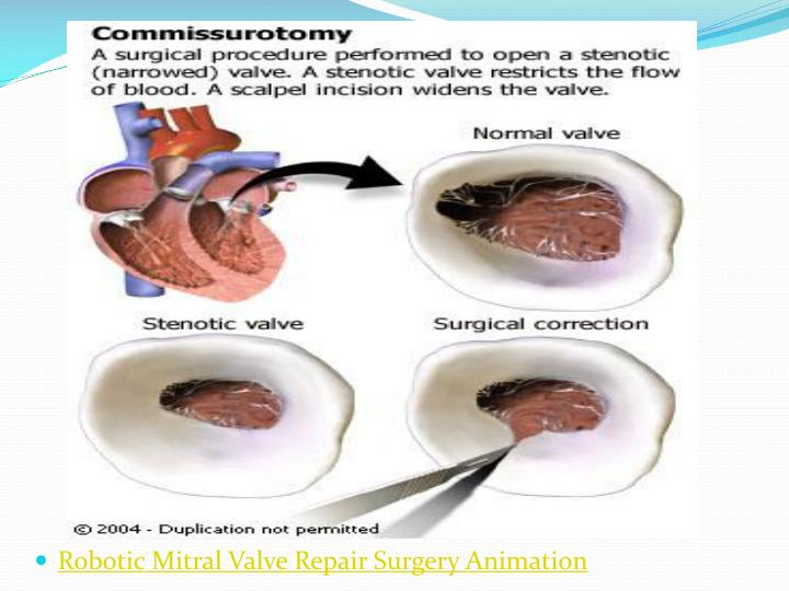Robotic Mitral Valve Repair Surgery Animation