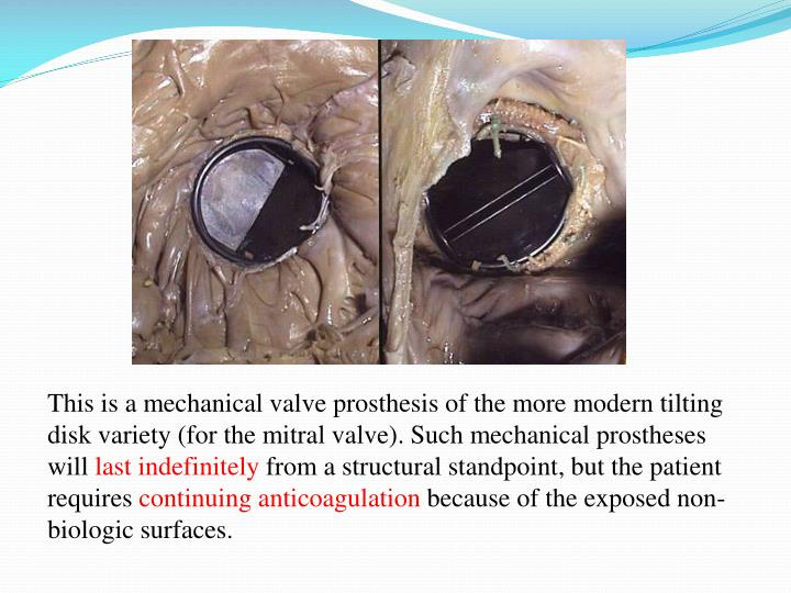 This is a mechanical valve prosthesis of the more modern tilting disk variety (for the mitral valve). Such mechanical prostheses will