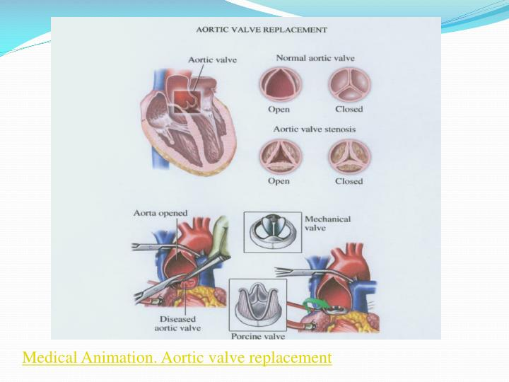 Medical Animation. Aortic valve replacement
