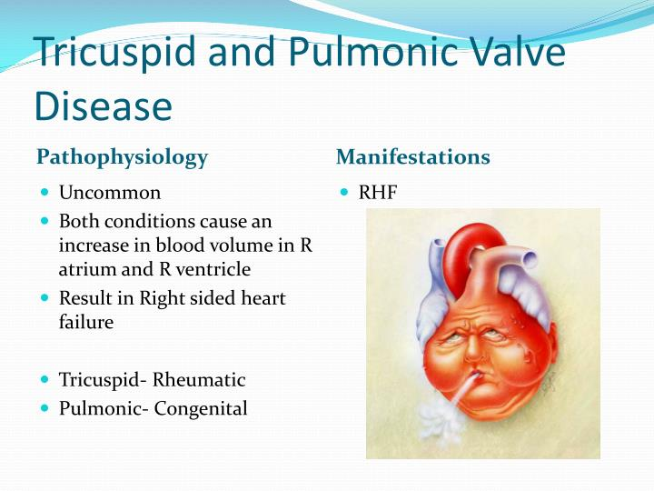 Tricuspid and Pulmonic Valve Disease