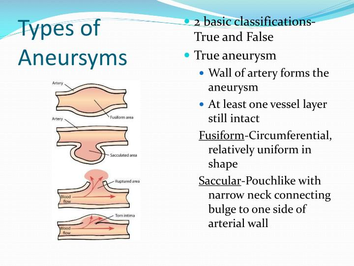 Types of Aneursyms