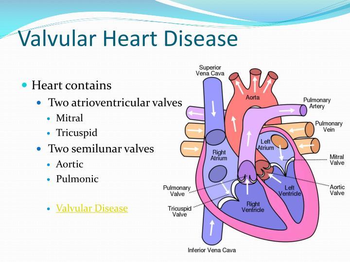 Valvular Heart Disease