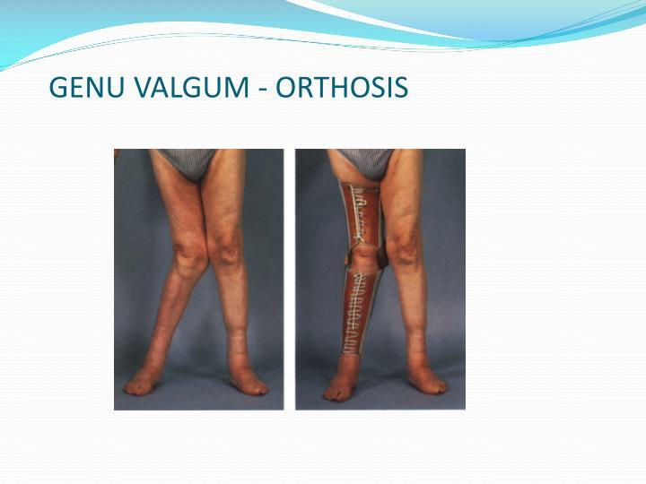 GENU VALGUM - ORTHOSIS