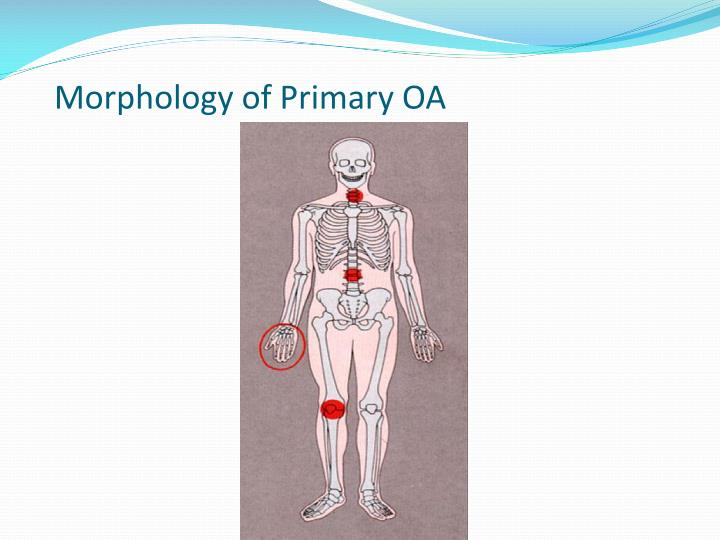 Morphology of Primary OA