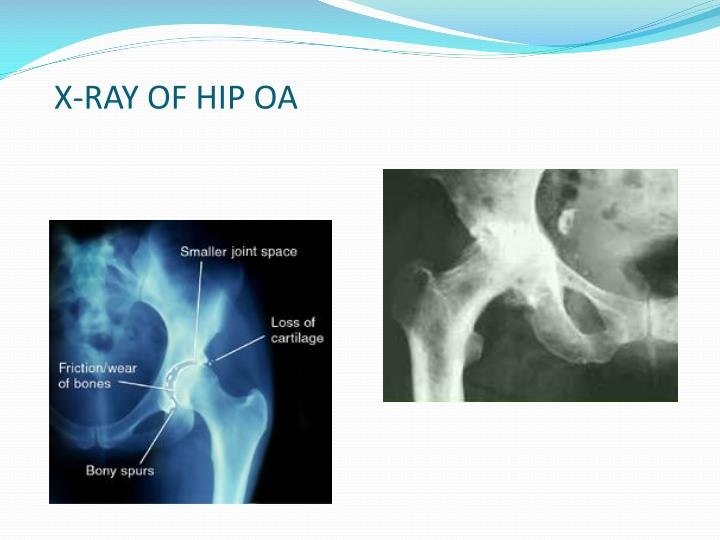X-RAY OF HIP OA